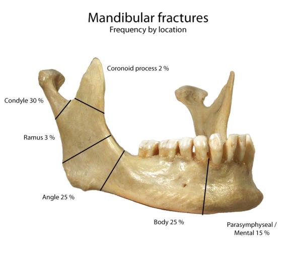 Mandbular_fractures