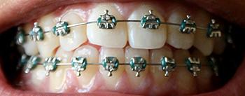 Dental_braces_small