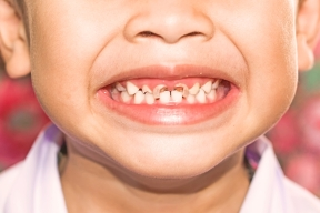 Image result for tooth decay in kids