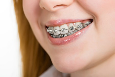 orthodontics-4