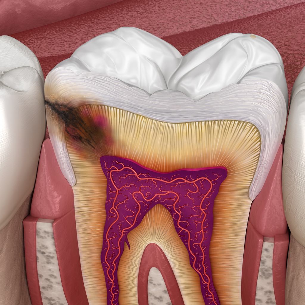 Illustration of a cross-section of a tooth  showing the different layers (tooth pulp, dentine, enamel. The dark shadow of caries is encroaching into the dentine.