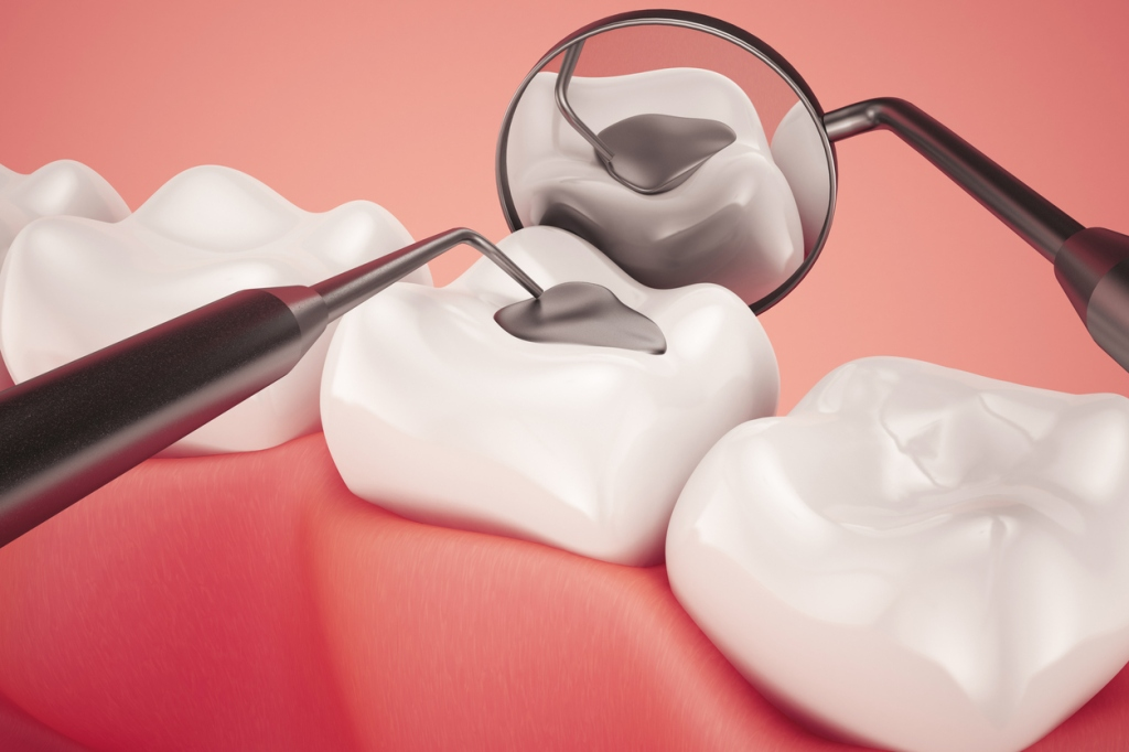 Close up of amalgam filling in a back tooth, being checked with dental mirror